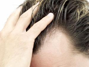 09 21 Ips To Avoid Baldness Aid0200