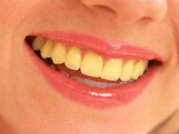Whiten Your Teeth In Just 2 Minutes With This Home Remedy