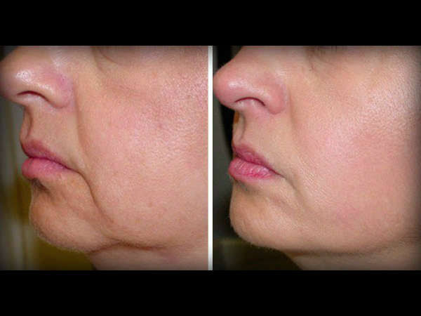 Home Remedies To Reduce Unwanted Face Fat