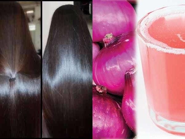 Onion Juice For Hair: Benefits, Instructions, Precautions