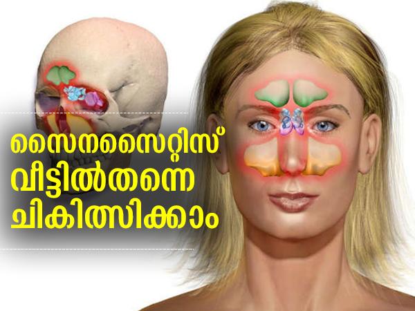സൈനസൈറ്റിസ് പ്രശ്നമാകില്ല; വീട്ടില്തന്നെ ചികിത്സിക്കാം