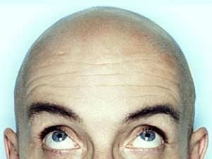 A 30 Min Cure For Baldness Aid