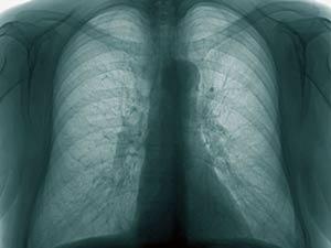 08 05 Urine Test Detect Tuberculosis Aid0178.html