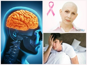 Effective Natural Cures For Brain Cancer