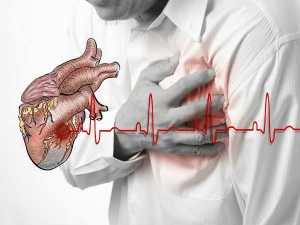 Five Signals You May Have Heart Attack In A Month