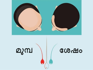 How To Regrow Hair On Bald Head Powerful Natural Solutions