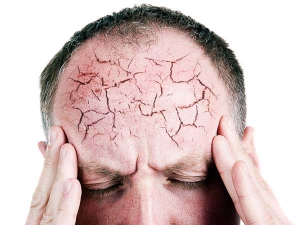 Understanding Of The Most Common Headache