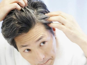 Natural Remedies To Cure Gray Hair
