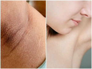 Get White Under Arms Naturally And Eliminate Armpits Odor