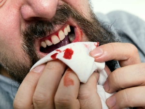 Home Remedies For Bleeding Gums That Actually Work