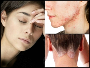 Six Skin Diseases That Are Caused Stress