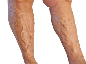 Make These Lifestyle Changes To Prevent The Growth Of Varicose Veins