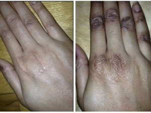 Home Remedies To Get Soft Hands Instantly