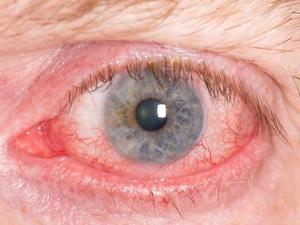 Does Eye Color Reveal Health Risks