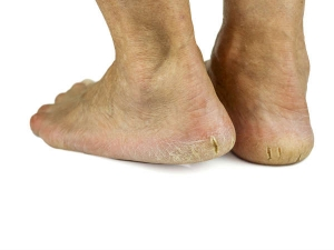 How To Heal Cracked Feet Naturally