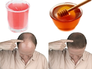 Homemade Onion Juice And Honey Hair Loss Treatment