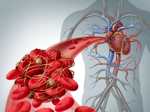How Remove Heart Blockage Naturally