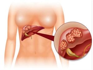 Silent Signs Liver Cancer