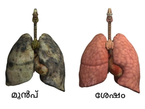 Clean Your Lungs Back To Life Only Three Days