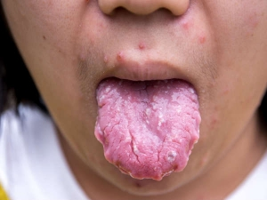 Home Remedies For Blisters On Tongue