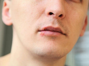 Dry Mouth Can Also Be Caused By These Things Think About It