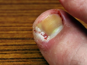 Remedy With Three Ingredients To Eliminate Toenail Fungus For Lifetime