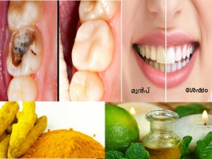 Use This Reverse Tooth Decay Cavities