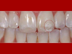 Home Remedies White Spots On Teeth