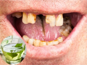 Green Tea Polyphenol Helps Kill Oral Cancer Cells