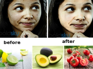 Natural Remedies To Get Fair Skin In Eight Days