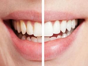 How Get Back Lost Enamel Teeth