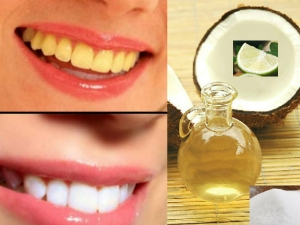 How Whiten Teeth 2 Minutes Using Coconut Oil