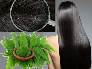 How To Treat Dandruff With Neem Leaves