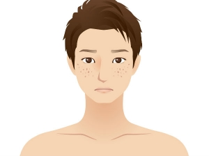 Causes Of Oily Eyelids And How To Prevent Them