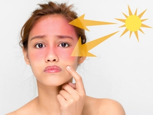 Natural Sun Damaged Skin Treatment And Home Remedies