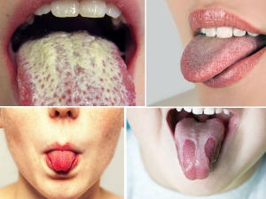 Five Gross Things That Happen When You Dont Clean Your Tongue