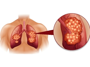 Things You Should Know About Lung Cancer