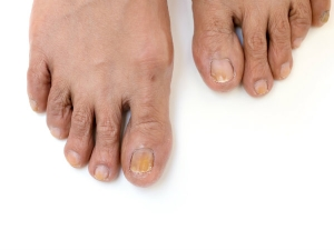 Things Your Feet Are Telling You About Your Health