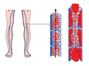 Surprising Risks For Deep Vein Thrombosis