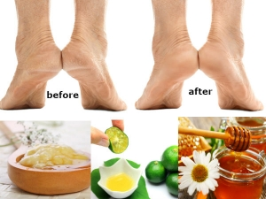 Home Remedy To Get Rid Of Cracked Heels In Three Days
