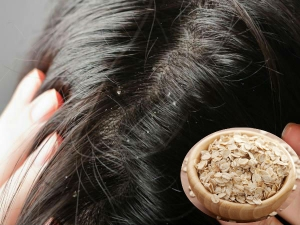 Try This Oatmeal Hair Pack To Stop Hair Fall Due To Dandruff