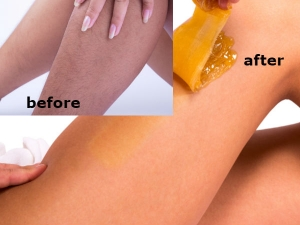 Remove Hair Naturally With This Simple Sugar Paste