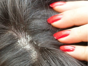 How To Get Rid Of Dandruff Ten Natural Treatment