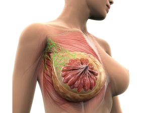 Breast Cancer Dont Ignore The Early Signs