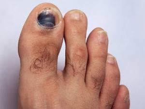 Health Reasons Behind Black Colour Around Toe Nail