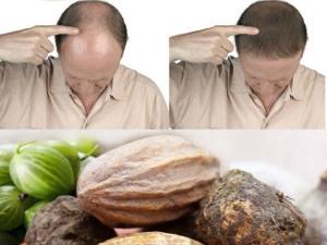 Ayurveda Remedy Hair Problems