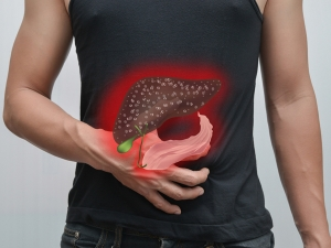 How Detect Liver Cancer An Early Stage