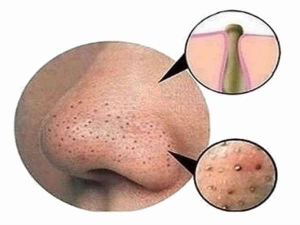 How Clear Blackheads Instantly