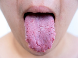 Secrets Your Tongue Can Reveal About Your Health