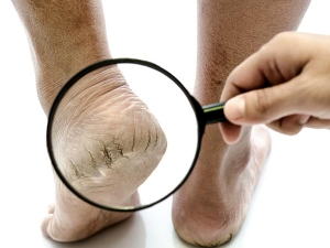 Baking Soda Home Remedy For Foot Problems